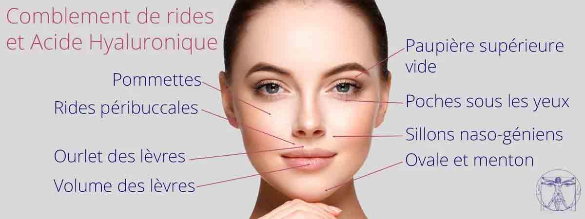 Les usages de l'acide hyaluronique sur le visage