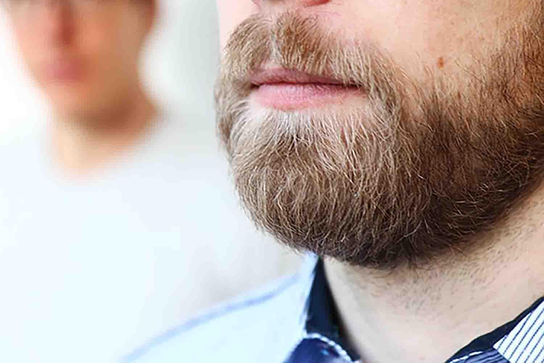 Greffe de barbe à Bordeaux