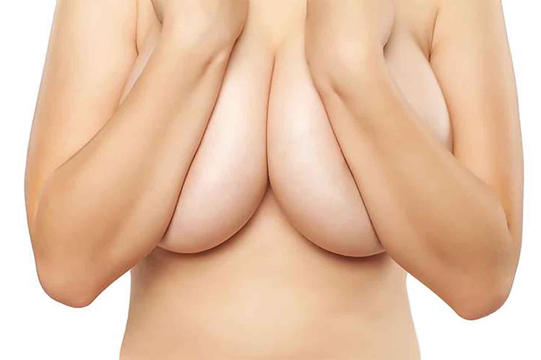Réduction mammaire à Bordeaux